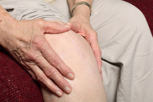 Treatment for arthritic problems